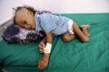 Khashoggi contro 50.000 bambini yemeniti massacrati